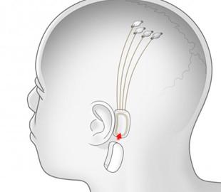 Маск презентовал успешно вживленный чип для подключения мозга к компьютеру